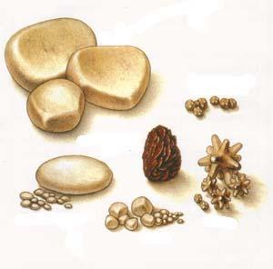 Почечные камни