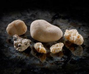 Симптомы камни в почках