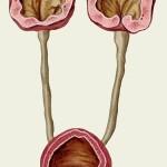 izobragenije pochek s gidronefrozom 150x150 - Гидронефроз у детей: все особенности болезни