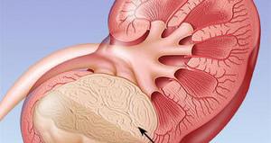 Схематическое изображение рака почки
