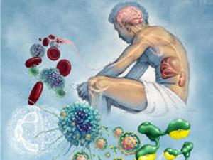Плазмаферез улучшает общее состояние больного