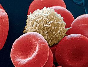 Гемосорбция - еще один вид очищения крови