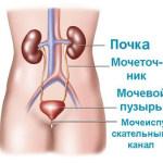 Катетеризация мочевого пузыря у мужчин – техника проведения процедуры