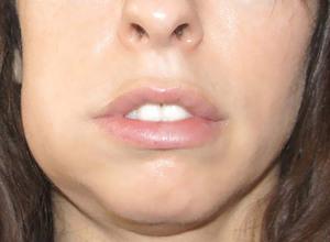 Одутловатость лица - характерный симптом уремии