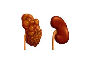 Схематическое изображение здоровой и больной поликистозом почки