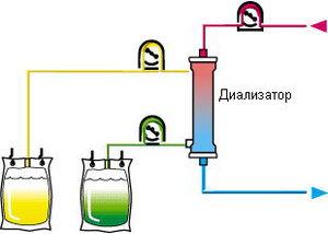 Технология проведения плазмафереза