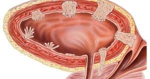 Рак мочевого пузыря - смертельное заболевание