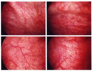 Геморрагический цистит – серьезное заболевание