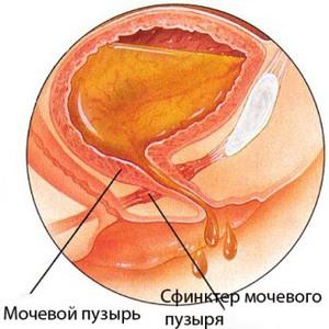Строение женской мочевыделительной системы