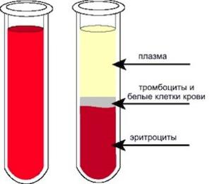 Технология очищения крови посредством плазмафереза
