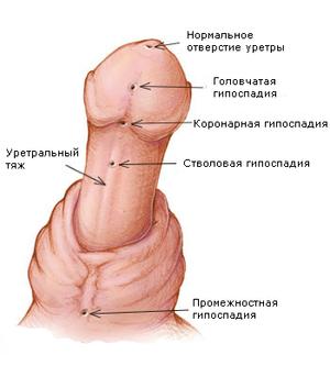 для чего нужна дырка в пенисе