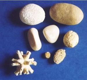 Виды камней в почках