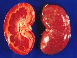 тубулоинтерстицианальный нефрит острый и хронический