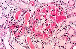 АА-амилоидоз в почках