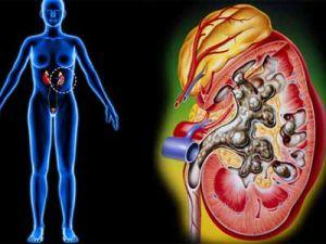 Симптомы и особенности лечения микронефролитиаза почек