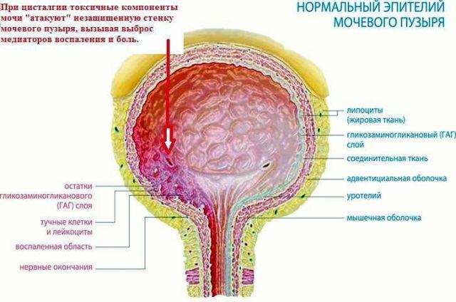 Цисталгия – болезненное мочеиспускание у женщин без явных причин