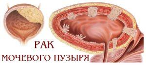 Что такое макрогематурия и при каких болезнях она выявляется?