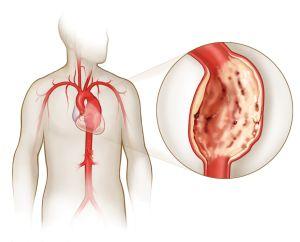 Что делать, если болит почка с левой стороны: симптомы, причины и лечение