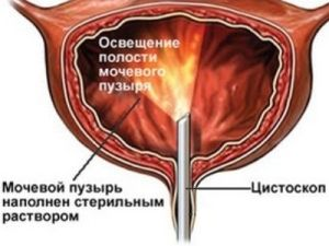 диагностика мочевого пузыря