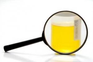 О чем говорит микрогематурия и каковы ее причины?
