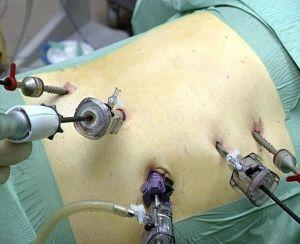 nefrektomiya - Нефропексия: операция для фиксации почки в нужном положении