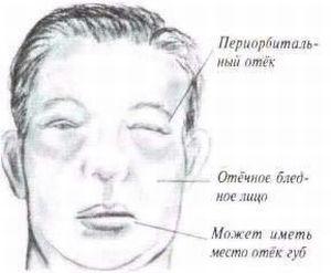 Отечный синдром: дифференциальная диагностика, лечение при заболеваниях почек