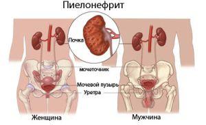 Что такое мочевой синдром: подход к диагностике и лечению