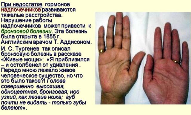 Проявление аддисоновой болезни