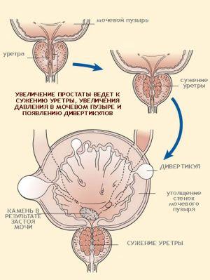 Симптомы и методы лечения дивертикула мочевого пузыря