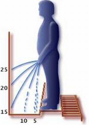 Стриктура уретры: причины и лечение сужения мочеиспускательного канала
