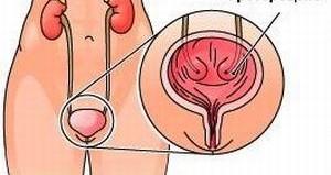 уретероцеле у женщин
