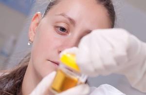 Анализы мочи на протеинурию