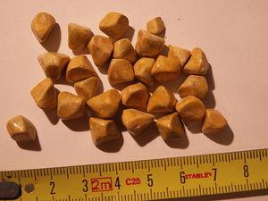 Камни в почках бывают разных размеров