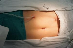 Лапароскопическая нефректомия