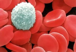 Повышенное содержание мочевой кислоты в крови