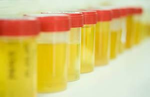 Урина на анализ