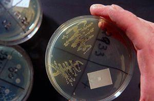 бактериурия в моче