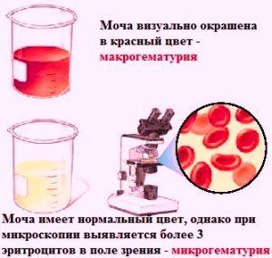 Макрогематурия как ее выявить