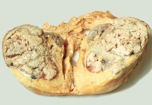 нефробластома опухоль