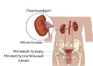 Пиелонефрит у беременных