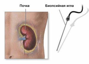 цена биопсии