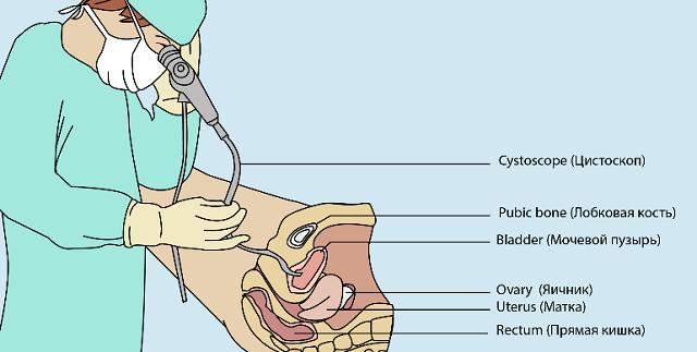 как проводится Цистография мочевого пузыря