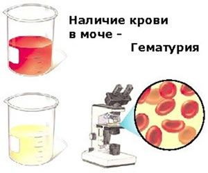 гематурия