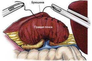 лапароскопическая нефропексия