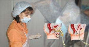 проведение процедуры инстилляции